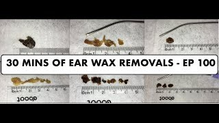 30 MINS OF EAR WAX REMOVALS - EP 100