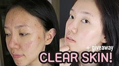 hqdefault - Acne Treatment In South Korea