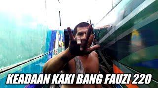 Download lagu KEADAAN KAKI BANG FAUZI ALS 220 || 4 KALI OPERASI MASIH SAKIT