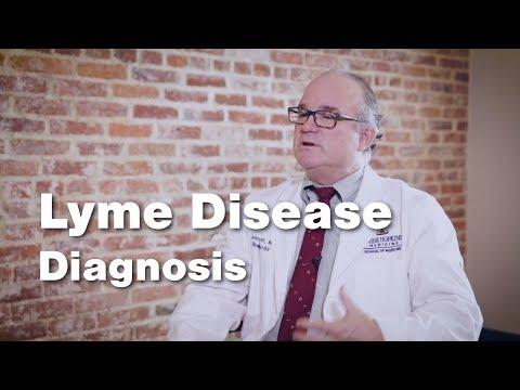Lyme Disease Diagnosis - Johns Hopkins (3 of 5)