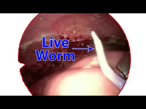 Live Worm Inside Human Body - Ileal Worm In Peritoneal Cavity