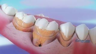 თუ კბილებს 24 საათის განმავლობაში  არ გამოვიხეხავთ, ემალზე ბაქტერიები დაიწყებენ ფორმირებას