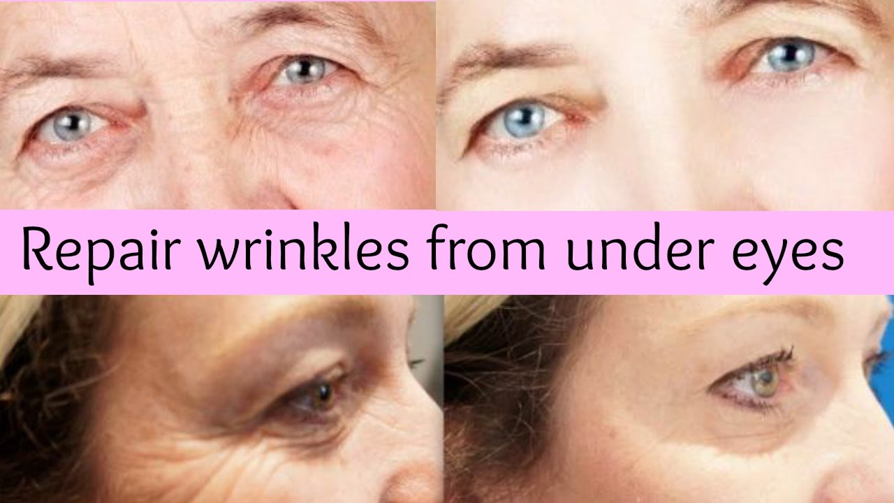 How to remove wrinkles under the eyes 37