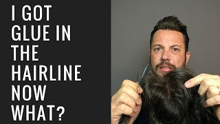 Hair Replacement Mens Hair System Review I Got Glue In The Hairline, Now What?