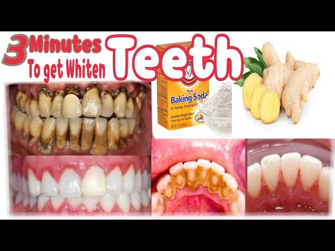 how-to-get-whiten-teeth-at-home-in-3-minutes-teeth-whitening-with-ginger-baking-soda-salt-and-lemon