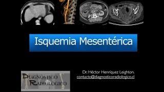Mesentérica trombosis wiki de