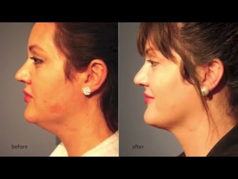 Double Chin Injections – Complete Skin Wagga
