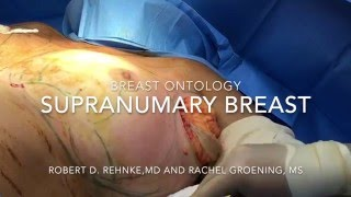 Supernumerary Breast and Breast Ontology- Dr. Robert Rehnke