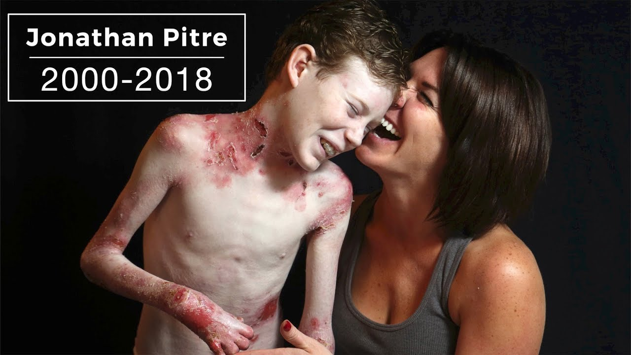Jonathan Pitre: 2000-2018 #1