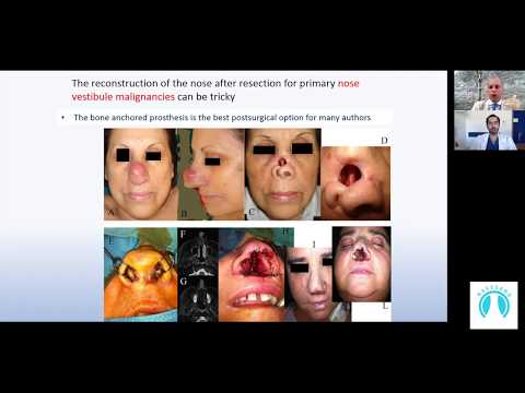 Interstitial Brachytherapy For The Management Of Nose Vestibule Malignancy | Naso Sano Adher-ENT1&15