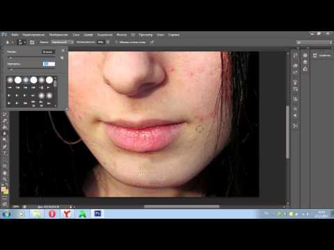 Удаление прыщей c помощью программы Adobe Photoshop CS6