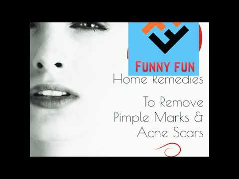 Home Remedies To Remove Pimples Marks and Acne Scars.
