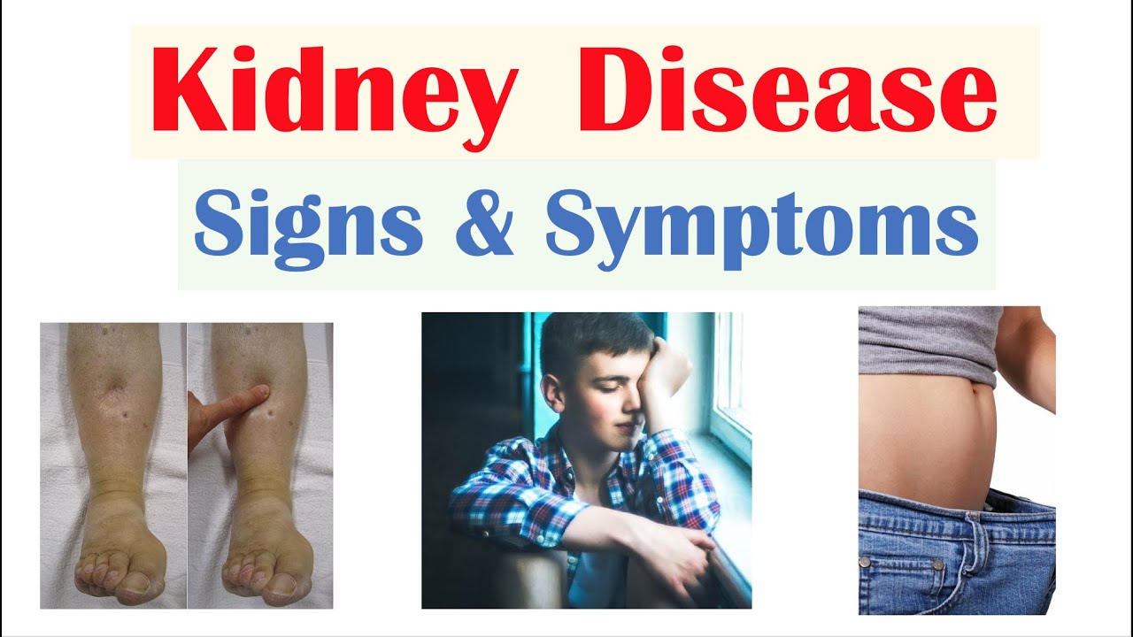 Kidney Renal Disease Signs Symptoms Ex Peripheral Edema Fatigue Itchiness Youtube