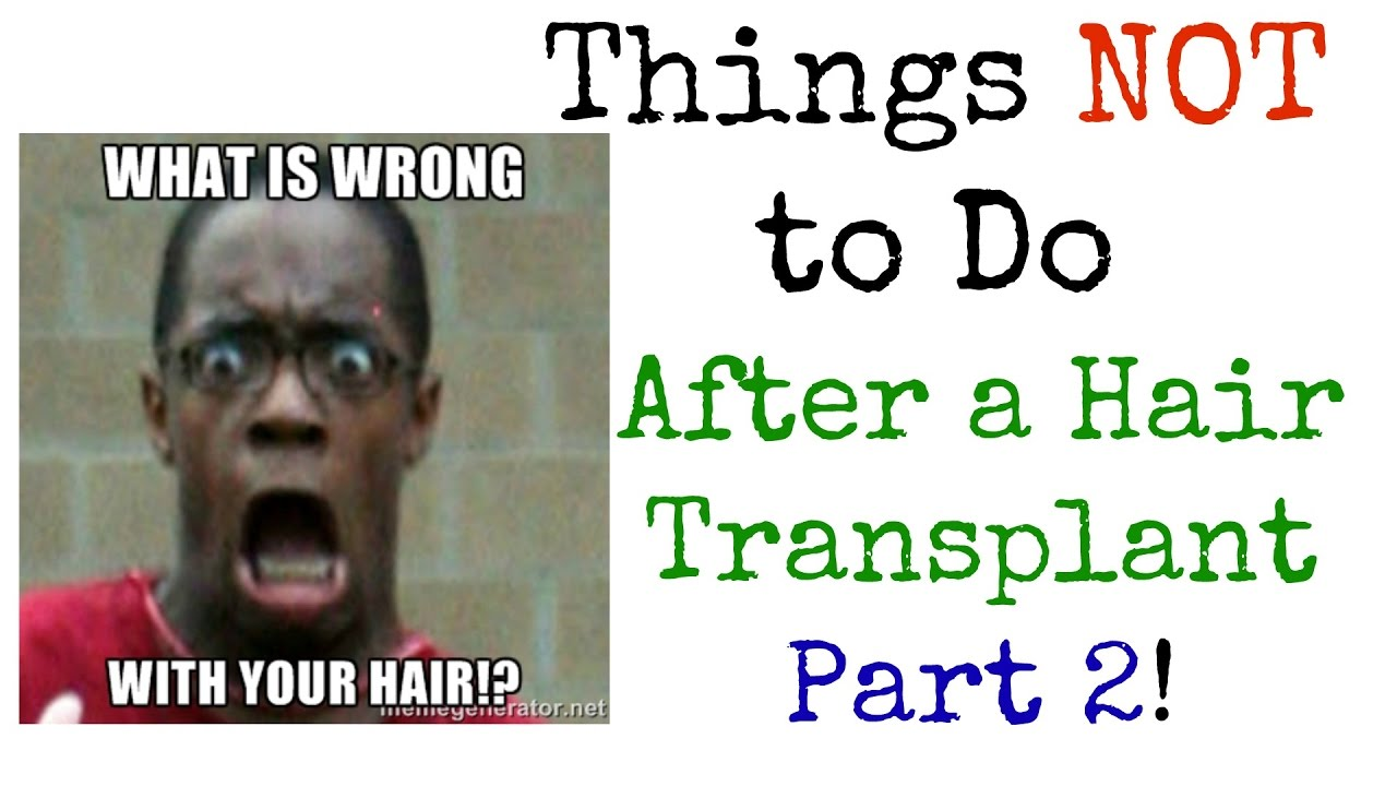 Do's and Don'ts Need to Know If Proceeding with the Hair Transplant Option