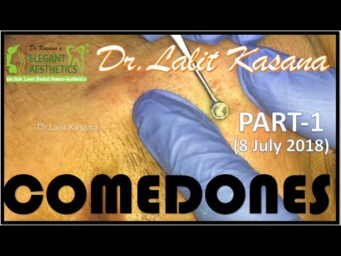 COMEDONE EXTRACTON PART-1 by Dr Lalit Kasana