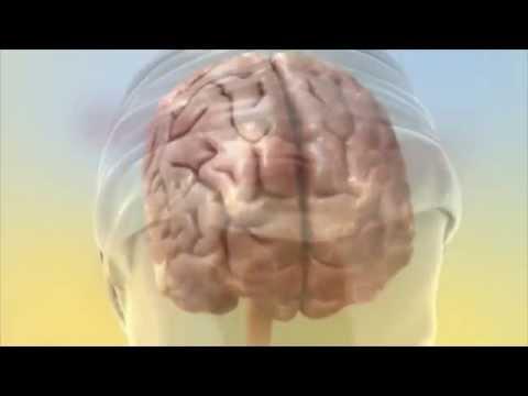 acoustic-cr-neuromodulation-tinnitus-treatment