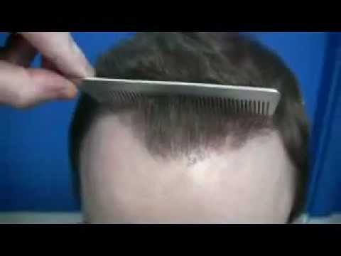 Hair transplant grafts