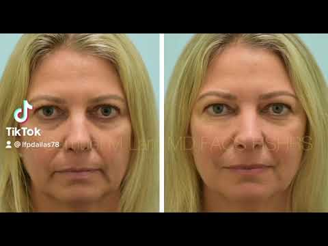 Dallas Botox and RF Microneedling Before and After