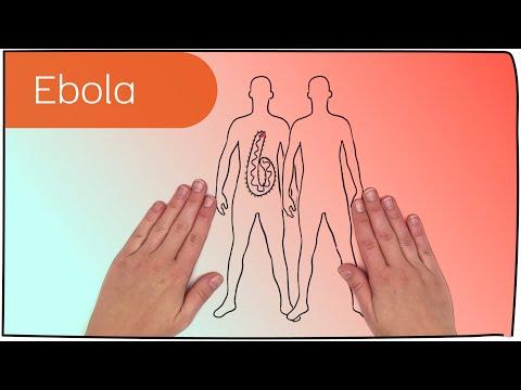 Ebola-Virus (und seine Wirkung im Körper) in 5 Minuten erklärt