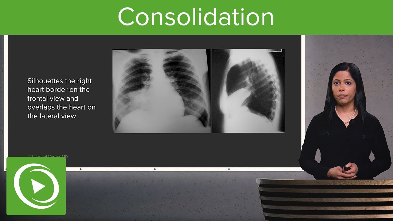 Consolidation – Radiology | Lecturio