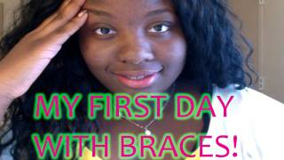 First Day With Braces Oct 2015