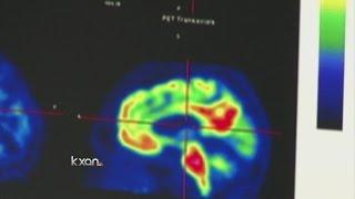 Biogen shares soar on optimistic Alzheimer's drug study data