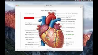 Anki for medical school: Studying anatomy using image occlusion
