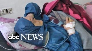Another suspected chemical weapons attack is latest chapter in brutal Syrian conflict