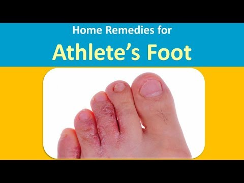 Home Remedies for Athlete's Foot with  Hydrogen Peroxide and Tea Tree oil