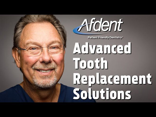 Advanced Tooth Replacement Solutions