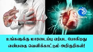 Signs that show you are having a heart attack