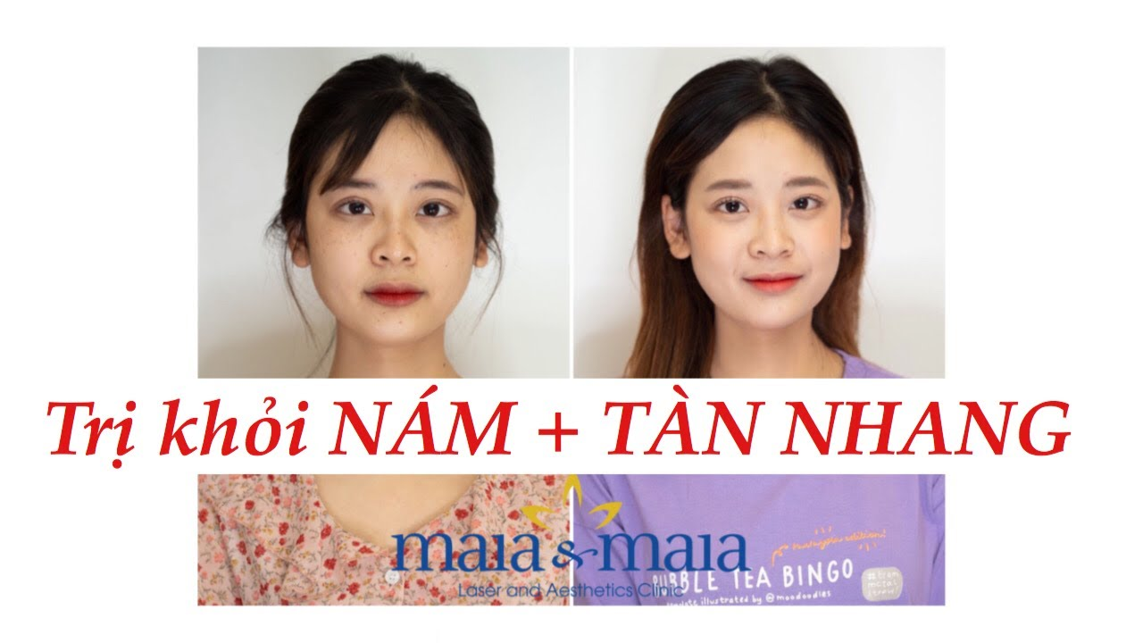 Trị thâm nám & tàn nhang hiệu quả bằng công nghệ gì tại Maia&Maia ? Hình ảnh trước và sau điều trị