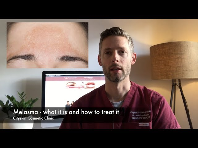 Melasma - what is is and how to treat it