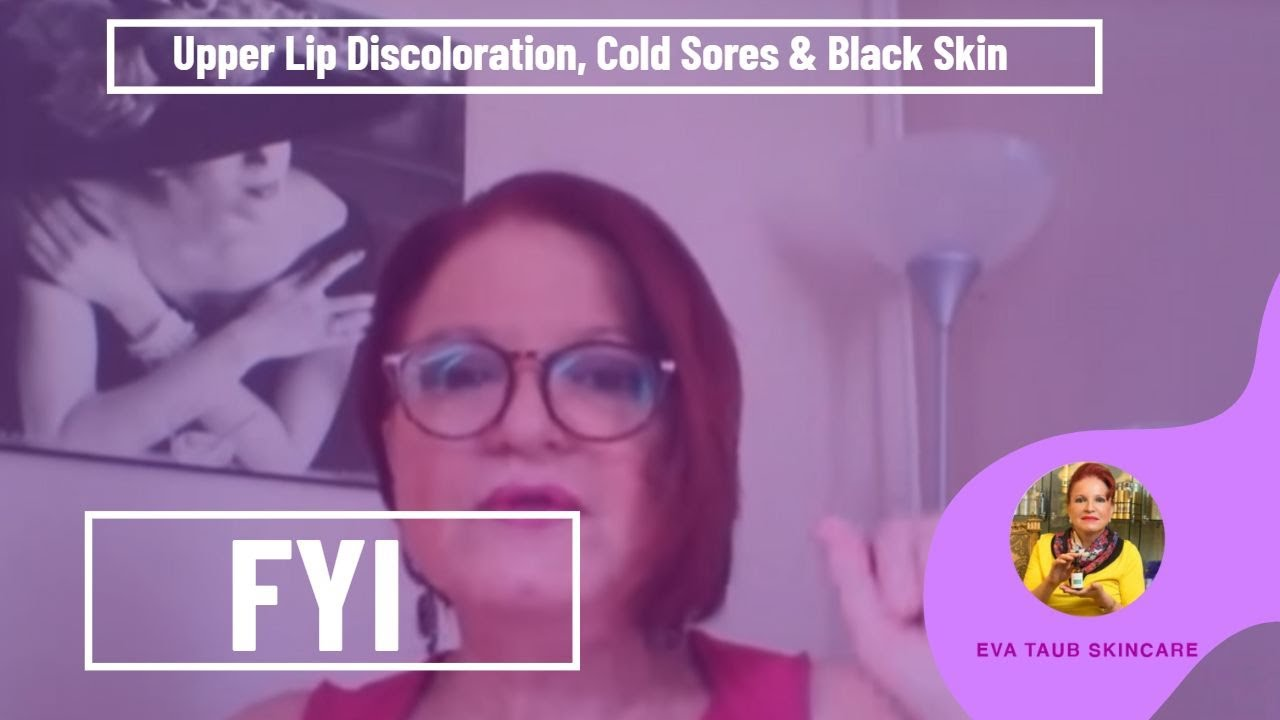 Light Discoloration On Face Decoratingspecial Com