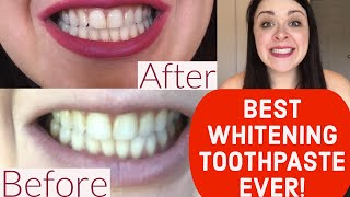 BEST WHITENING TOOTHPASTE EVER: REVIEW Crest 3D White Brilliance