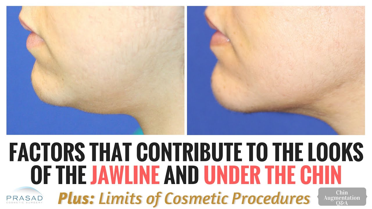 Anatomic Factors of Jawline and Under the Chin Definition, and the ...