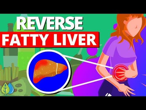 Top 10 Foods That Reverse Fatty Liver Disease