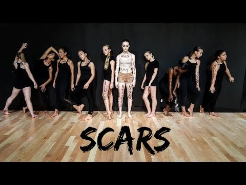 Scars - Alessia Cara (Dance Video)