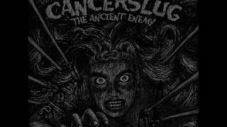 Watch Cancerslug Queen Of The Night video