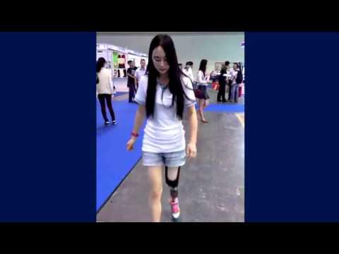 Beautiful LAK amputee  girl walking with her new prosthetic leg
