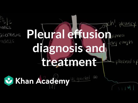 Pleural effusion diagnosis and treatment | Respiratory system diseases | NCLEX-RN | Khan Academy