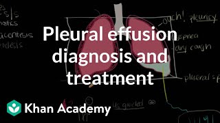 pleural effusion causes diagnosis and treatment - 320×180