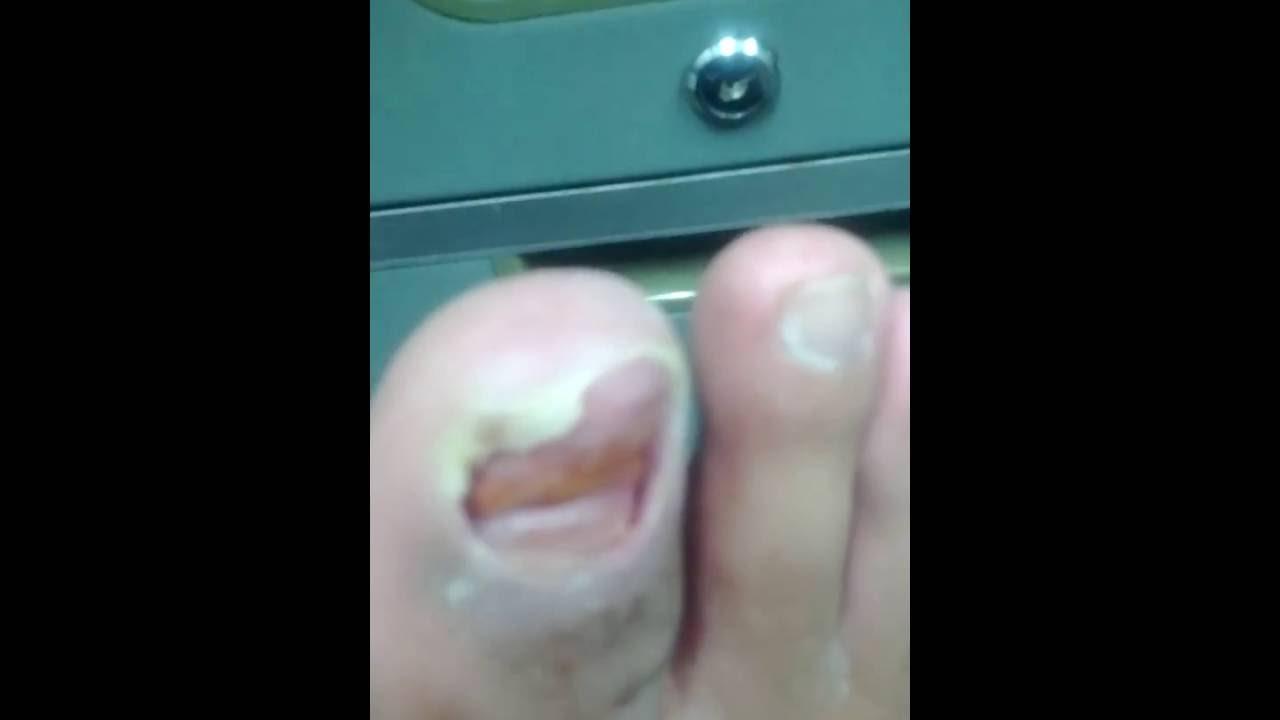 剥がれ が 爪 の 足 た の 親指