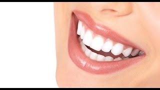 #30 Первый шаг к ГОЛЛИВУДСКОЙ УЛЫБЕ. Сколько стоит лечение зубов  в Америке.(, 2015-04-13T01:24:57.000Z)