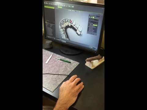 Straumann scanning and CAD CAM crown and bridge design