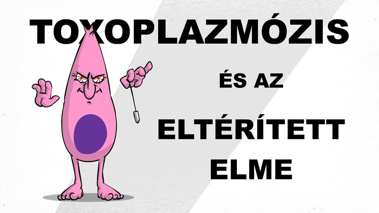 akut toxoplazmózis)