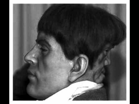Man with two faces edward mordrake