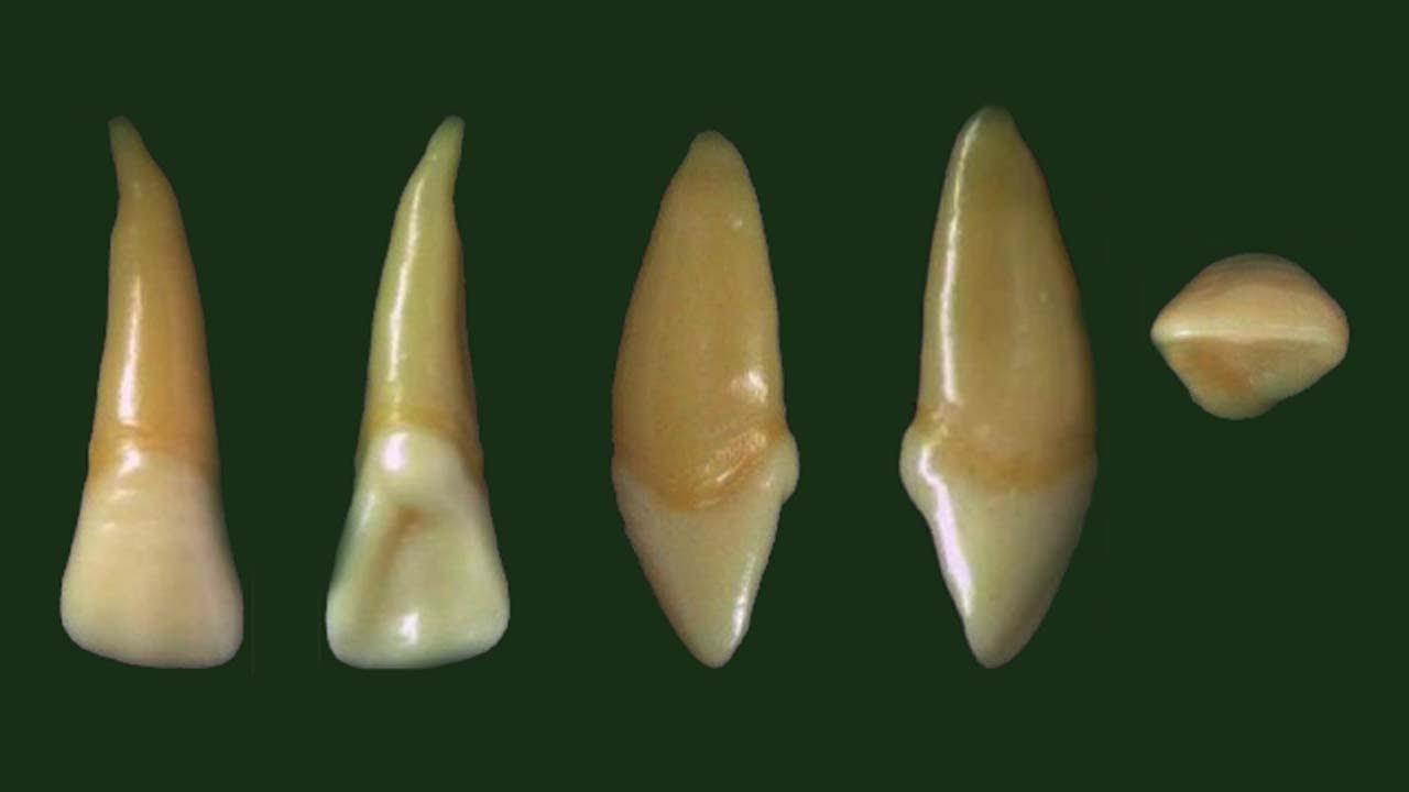 maxillary lateral incisor anatomy(permanent) - YouTube