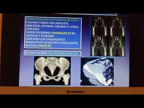 Curso de Tomografía Computada - Columna Vertebral y Osteoarticular ...