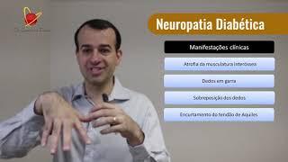 Sin apetito neuropatía